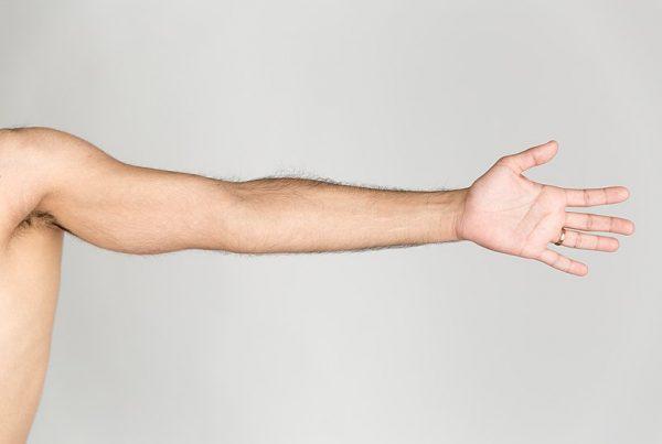 Tendinite braccio sinistro