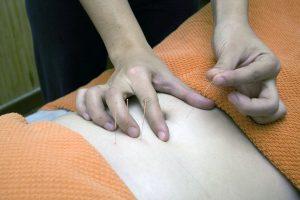 Colpo di frusta e Agopuntura
