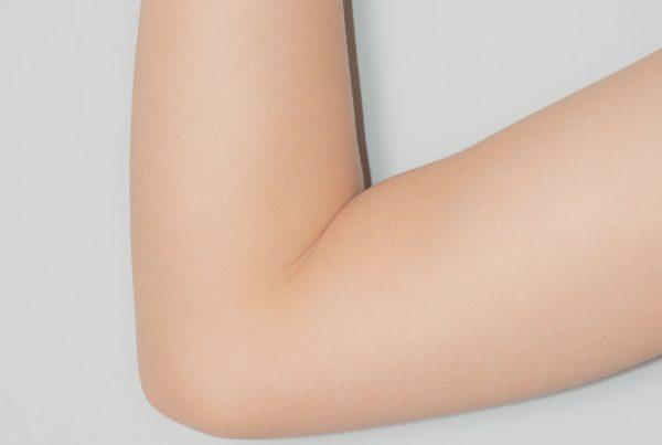 braccio intorpidito