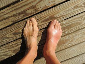 caviglie gonfie sintomi e cause