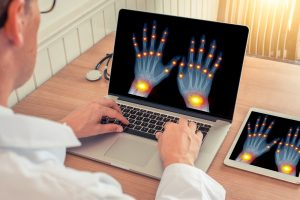 Radiografia Cosa è la Rizoartrosi