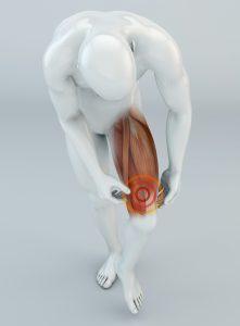 Strappo Muscolare, localizzazione cause sintomi trattamento a Roma