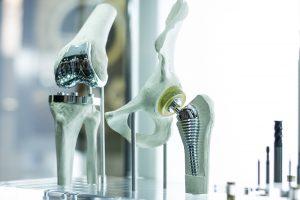 Dispositivi moderni di protesi al ginocchio