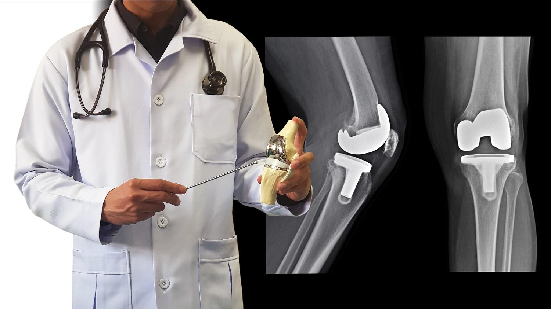 Protesi al ginocchio, cosa è